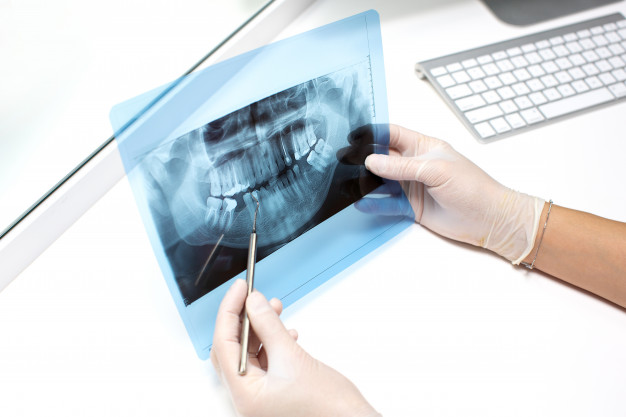 dentist-examines-x-ray-photo-teeths_140725-7693.jpg