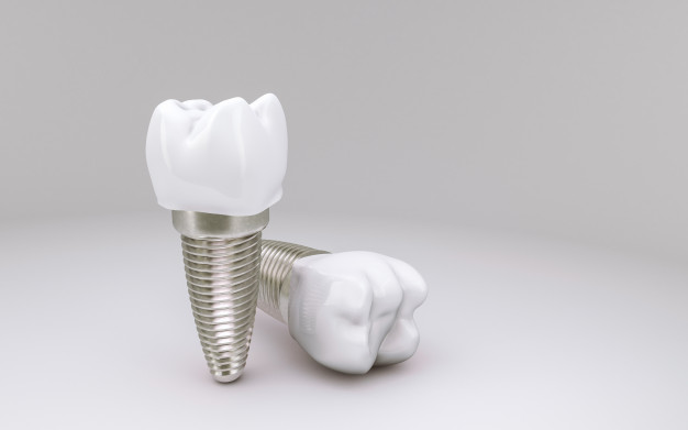tooth-implant-concept-white_78895-1537.jpg